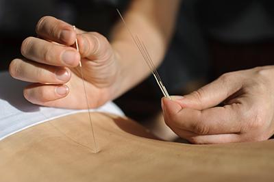 acupuntura curso