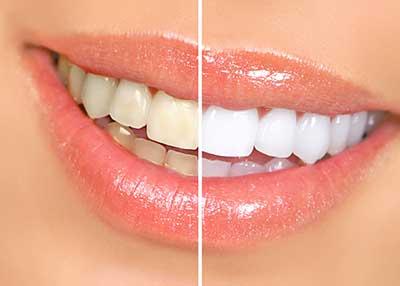 curso de blanqueamiento dental gratis cursos online