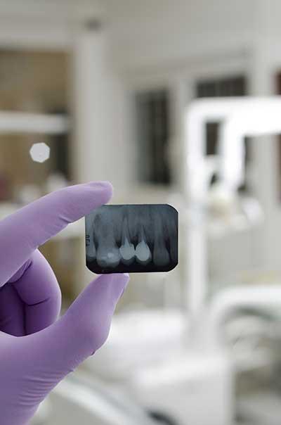 curso de radiologia dental gratis cursos online