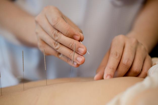 en que consiste la acupuntura estetica