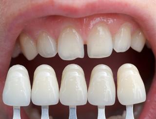 curso de laboratorio dental